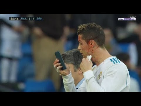 Cristiano Ronaldo using an iPhone to look at this wound