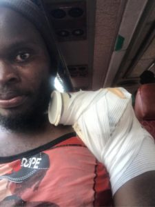 Yahaya Mohammed confident of quick return from shoulder injury